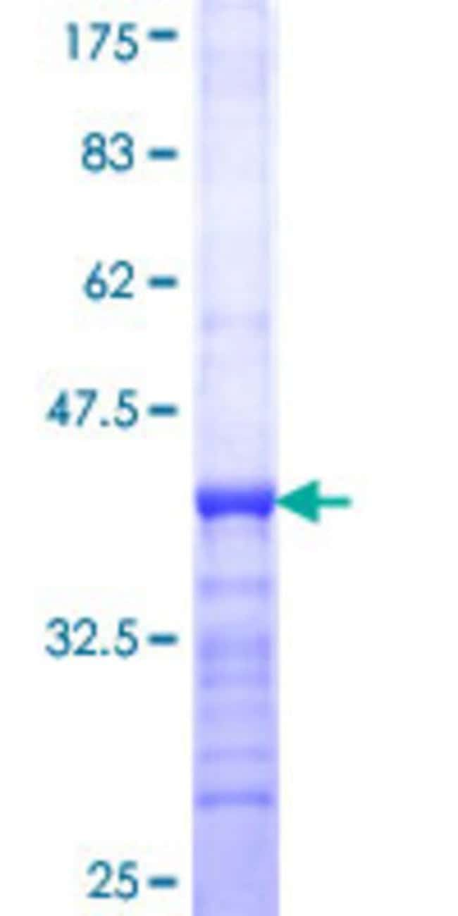 Abnova™Human DGKE Partial ORF (NP_003638, 141 a.a. - 240 a.a.) Recombinant Protein with GST-tag at N-terminal 25μg Abnova™Human DGKE Partial ORF (NP_003638, 141 a.a. - 240 a.a.) Recombinant Protein with GST-tag at N-terminal