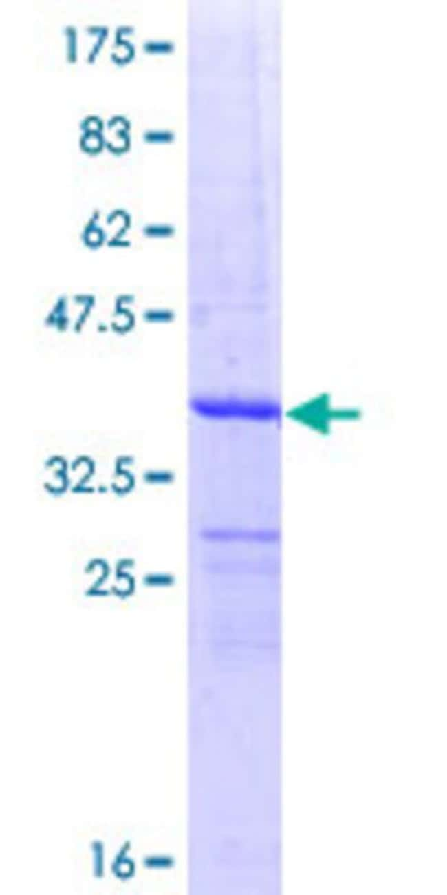 Abnova™Human DDO Partial ORF (NP_003640, 270 a.a. - 369 a.a.) Recombinant Protein with GST-tag at N-terminal 25μg Abnova™Human DDO Partial ORF (NP_003640, 270 a.a. - 369 a.a.) Recombinant Protein with GST-tag at N-terminal