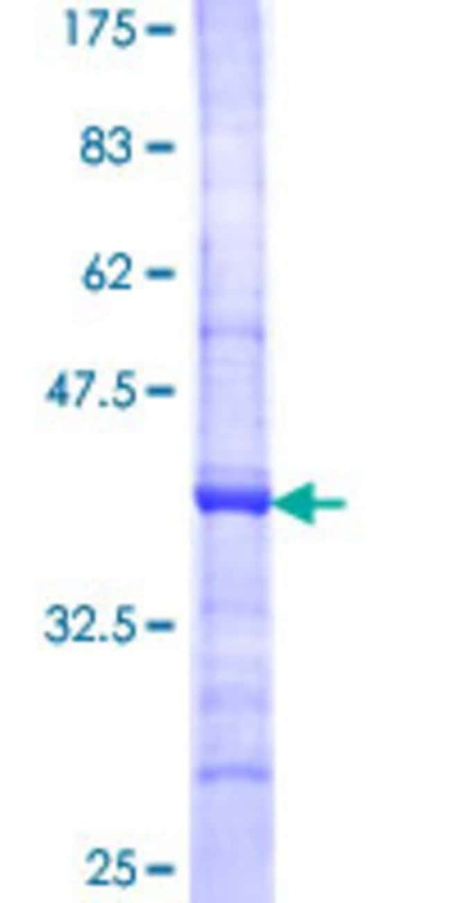 Abnova™Human CST7 Partial ORF (NP_003641, 68 a.a. - 167 a.a.) Recombinant Protein with GST-tag at N-terminal 25μg Abnova™Human CST7 Partial ORF (NP_003641, 68 a.a. - 167 a.a.) Recombinant Protein with GST-tag at N-terminal