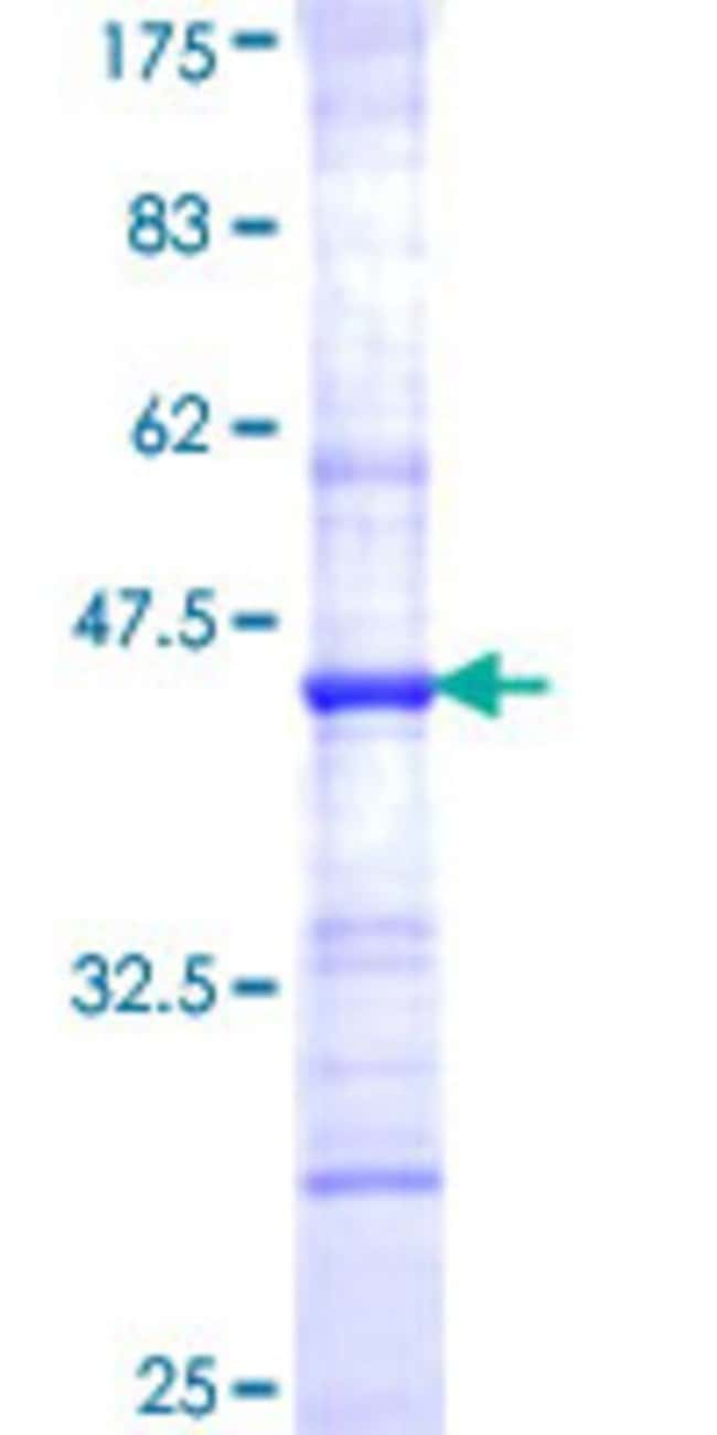 Abnova™Human CHST1 Partial ORF (NP_003645, 168 a.a. - 267 a.a.) Recombinant Protein with GST-tag at N-terminal 25μg Abnova™Human CHST1 Partial ORF (NP_003645, 168 a.a. - 267 a.a.) Recombinant Protein with GST-tag at N-terminal