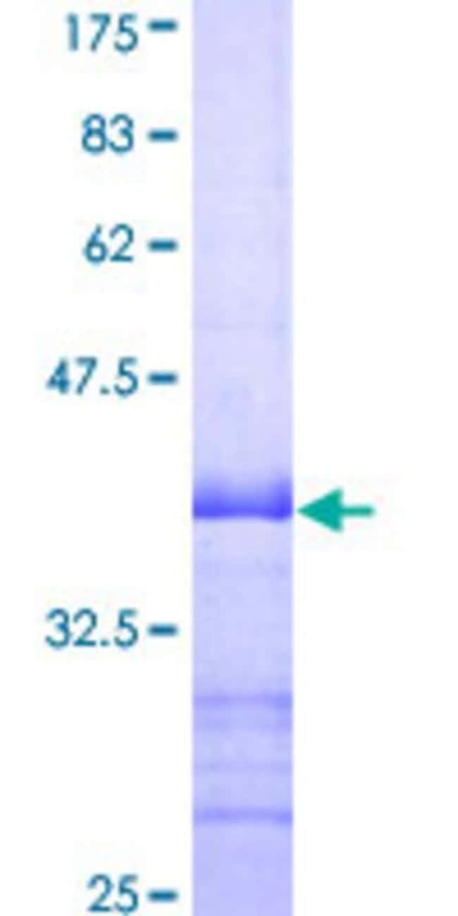 Abnova™Human CAMK1 Partial ORF (NP_003647, 271 a.a. - 370 a.a.) Recombinant Protein with GST-tag at N-terminal 25μg Abnova™Human CAMK1 Partial ORF (NP_003647, 271 a.a. - 370 a.a.) Recombinant Protein with GST-tag at N-terminal