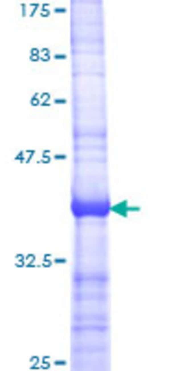 AbnovaHuman API5 Partial ORF (AAH17709, 400 a.a. - 504 a.a.) Recombinant