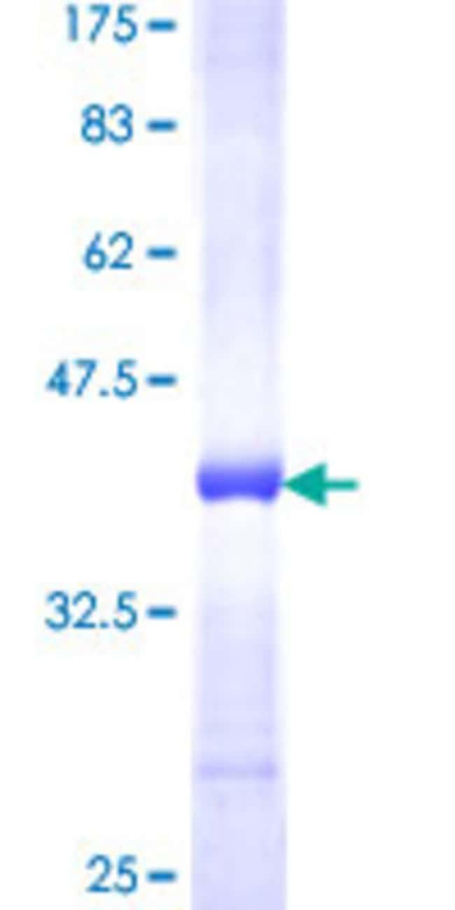 Abnova™Human AP3B1 Partial ORF (NP_003655, 995 a.a. - 1094 a.a.) Recombinant Protein with GST-tag at N-terminal 10μg Abnova™Human AP3B1 Partial ORF (NP_003655, 995 a.a. - 1094 a.a.) Recombinant Protein with GST-tag at N-terminal