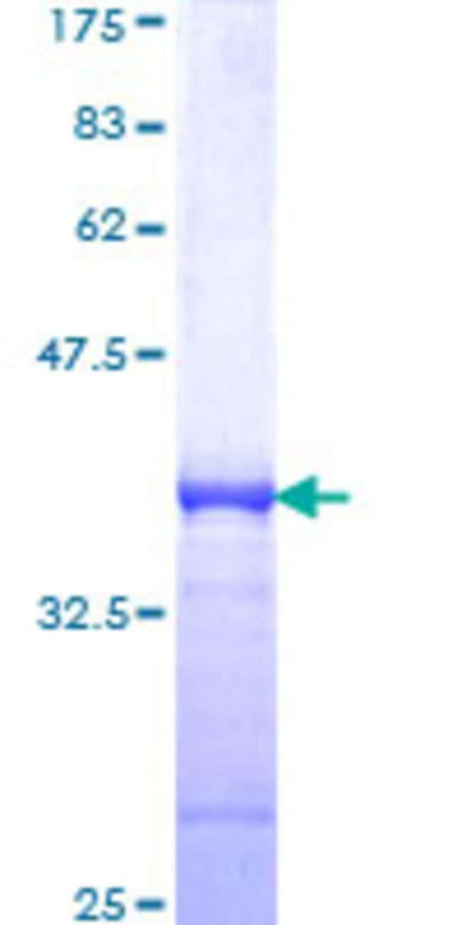 Abnova™Human BHLHB2 Partial ORF (NP_003661, 130 a.a. - 229 a.a.) Recombinant Protein with GST-tag at N-terminal 10μg Abnova™Human BHLHB2 Partial ORF (NP_003661, 130 a.a. - 229 a.a.) Recombinant Protein with GST-tag at N-terminal