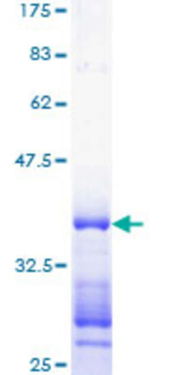 Abnova™Human CDC14A Partial ORF (NP_003663, 431 a.a. - 530 a.a.) Recombinant Protein with GST-tag at N-terminal 10μg Abnova™Human CDC14A Partial ORF (NP_003663, 431 a.a. - 530 a.a.) Recombinant Protein with GST-tag at N-terminal