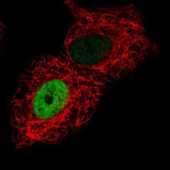 CDH17 Rabbit anti-Human, Polyclonal , Abnova 100μL; Unlabeled:Antibodies