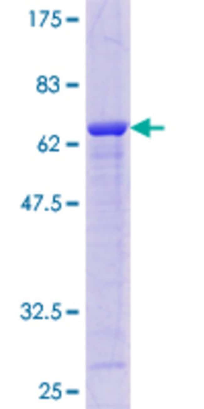 AbnovaHuman AKR7A2 Full-length ORF (AAH10852.1, 1 a.a. - 330 a.a.) Recombinant
