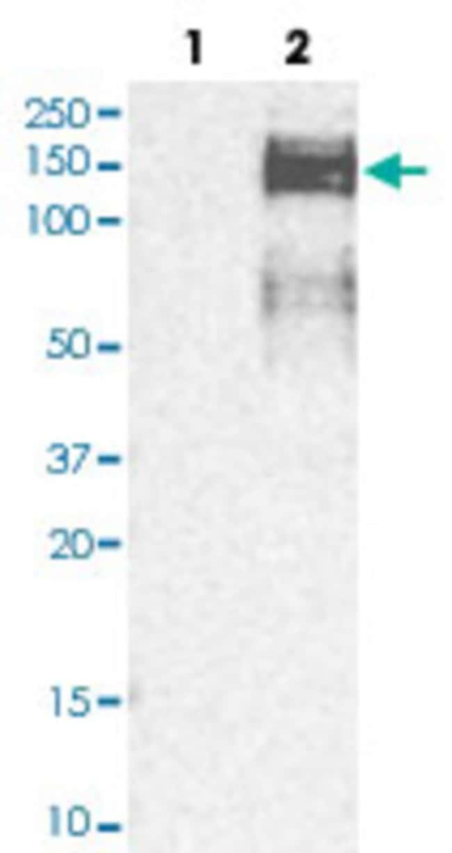 ZEB1 Rabbit anti-Human, Polyclonal , Abnova 100μL; Unlabeled:Antibodies