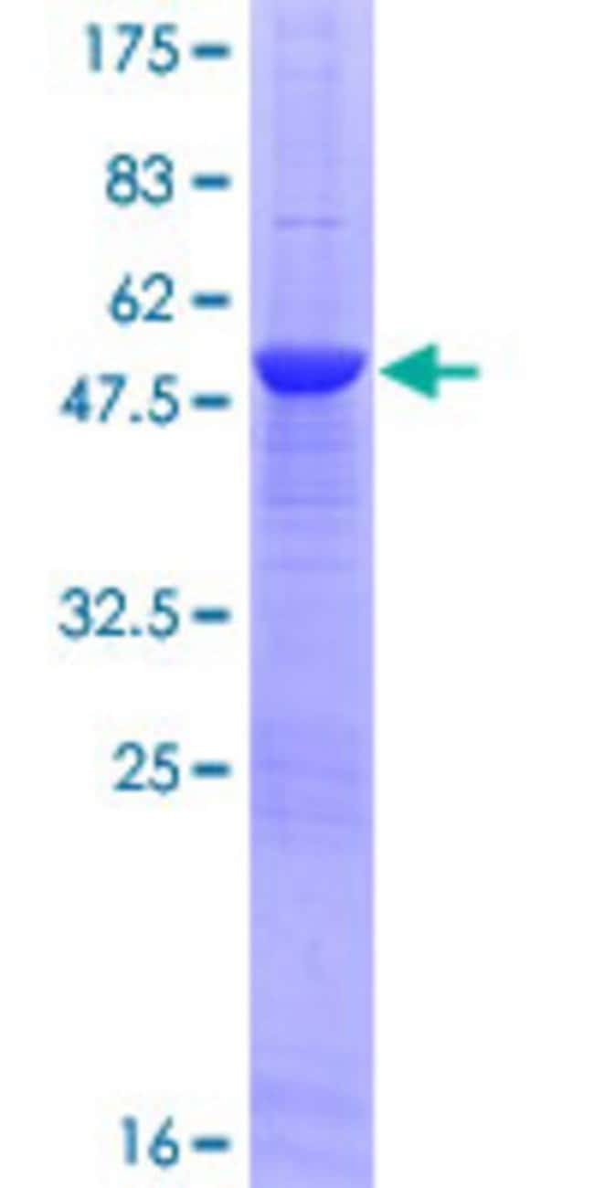 Abnova™Human TNFSF11 Full-length ORF (ENSP00000351347, 1 a.a. - 244 a.a.) Recombinant Protein with GST-tag at N-terminal 10μg Abnova™Human TNFSF11 Full-length ORF (ENSP00000351347, 1 a.a. - 244 a.a.) Recombinant Protein with GST-tag at N-terminal
