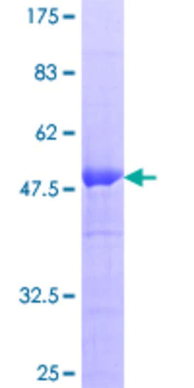 Abnova™Human RGS20 Full-length ORF (NP_003693.2, 1 a.a. - 241 a.a.) Recombinant Protein with GST-tag at N-terminal 10μg Abnova™Human RGS20 Full-length ORF (NP_003693.2, 1 a.a. - 241 a.a.) Recombinant Protein with GST-tag at N-terminal