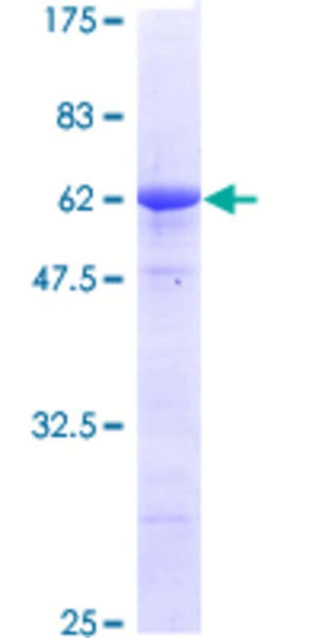 Abnova™Human STC2 Full-length ORF (AAH00658, 1 a.a. - 302 a.a.) Recombinant Protein with GST-tag at N-terminal 25μg Abnova™Human STC2 Full-length ORF (AAH00658, 1 a.a. - 302 a.a.) Recombinant Protein with GST-tag at N-terminal