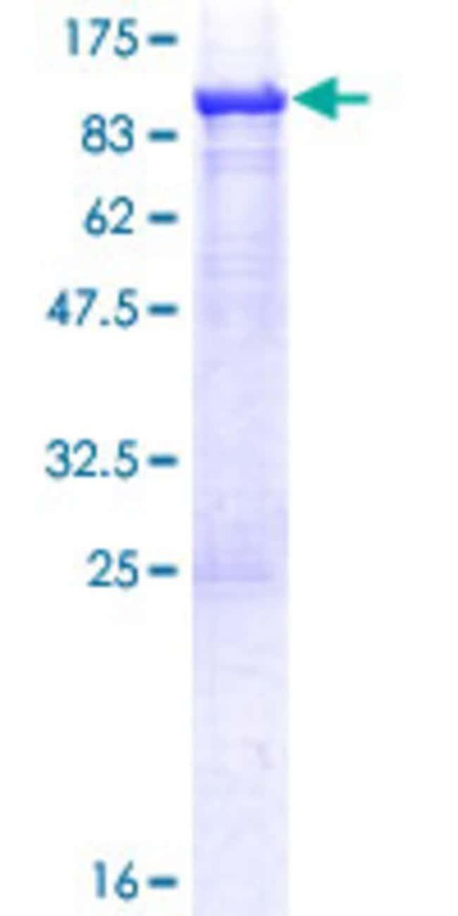 AbnovaHuman ASMTL Full-length ORF (AAH02508.1, 1 a.a. - 621 a.a.) Recombinant