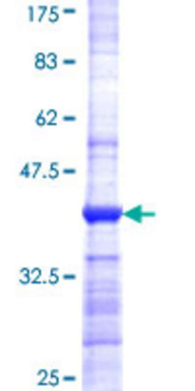 Abnova Human JRK Partial ORF (NP_003715, 2 a.a. - 100 a.a.) Recombinant
