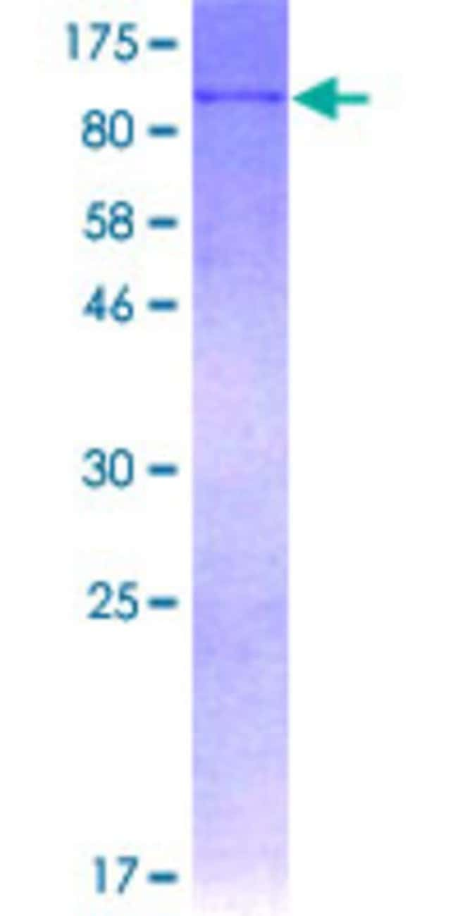 AbnovaHuman AOC3 Full-length ORF (AAH50549.1, 1 a.a. - 763 a.a.) Recombinant