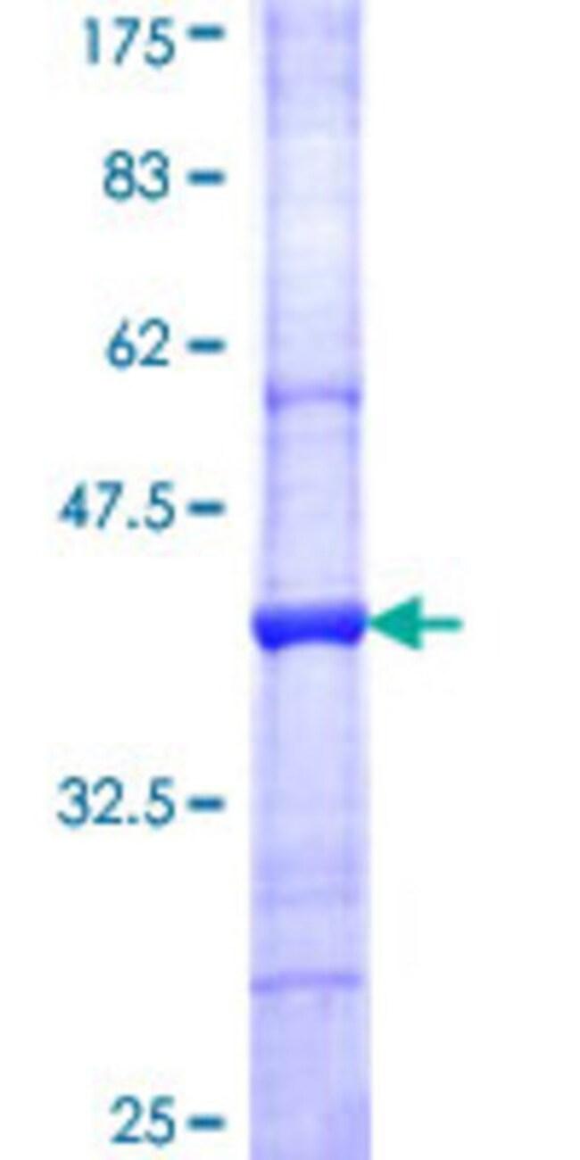 AbnovaHuman AOC3 Partial ORF (NP_003725, 351 a.a. - 450 a.a.) Recombinant