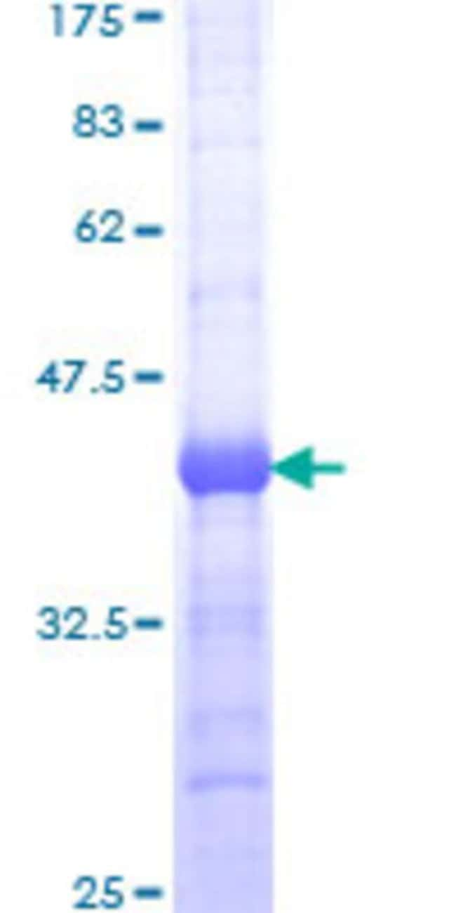 Abnova™Human PDE5A Partial ORF (NP_001074, 29 a.a. - 138 a.a.) Recombinant Protein with GST-tag at N-terminal 10μg Abnova™Human PDE5A Partial ORF (NP_001074, 29 a.a. - 138 a.a.) Recombinant Protein with GST-tag at N-terminal