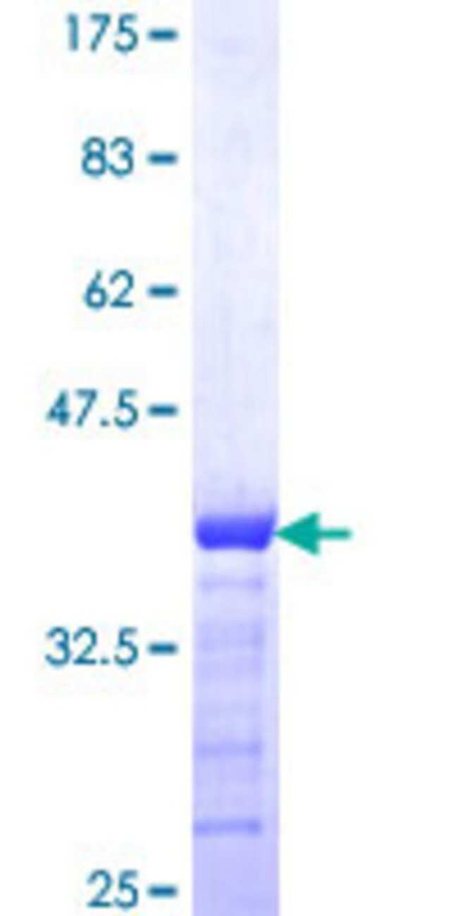 Abnova™Human SLC4A4 Partial ORF (NP_003750, 121 a.a. - 229 a.a.) Recombinant Protein with GST-tag at N-terminal 25μg Abnova™Human SLC4A4 Partial ORF (NP_003750, 121 a.a. - 229 a.a.) Recombinant Protein with GST-tag at N-terminal