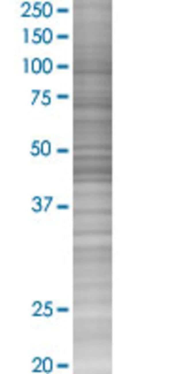 Abnova KRT36 293T Cell Transient Overexpression Lysate (Denatured) (T02)