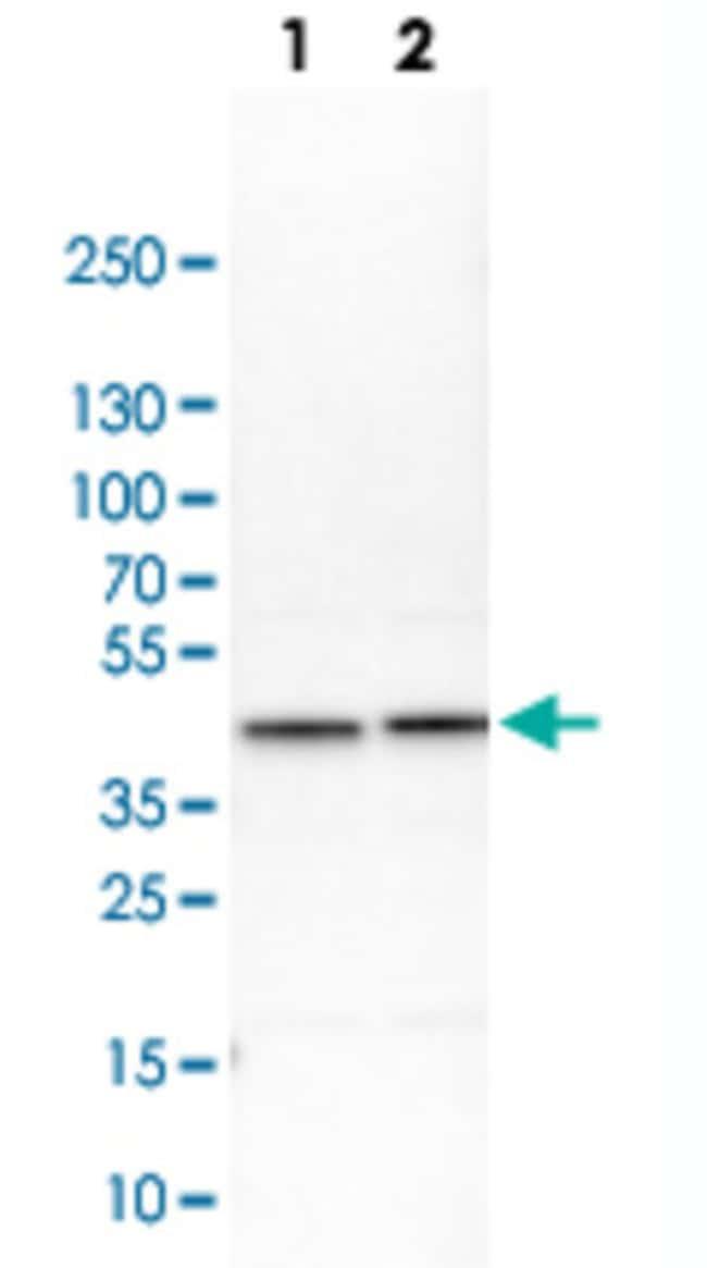 AHSA1 Rabbit anti-Human, Mouse, Rat, Polyclonal , Abnova 100μL; Unlabeled:Antibodies