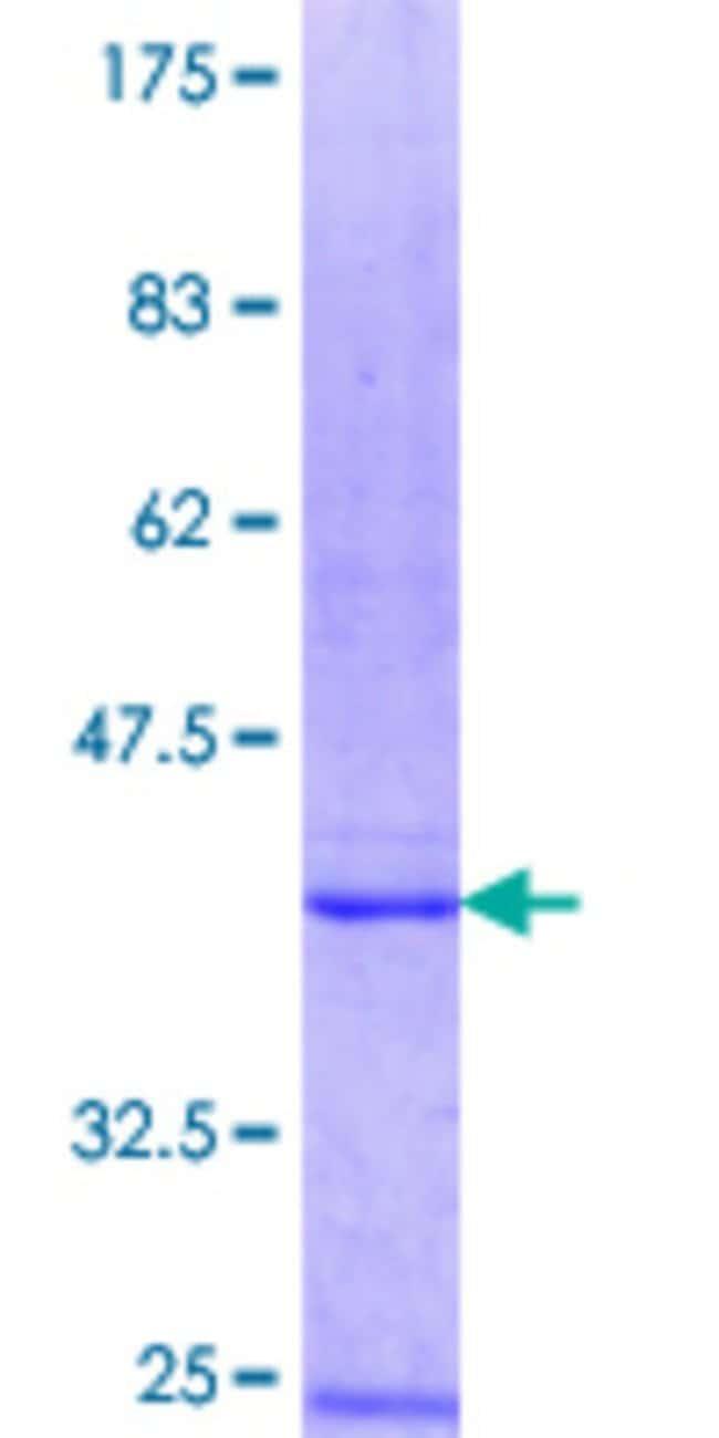 Abnova™Human B3GALT4 Partial ORF (NP_003773.1, 151 a.a. - 250 a.a.) Recombinant Protein with GST-tag at N-terminal 10μg Abnova™Human B3GALT4 Partial ORF (NP_003773.1, 151 a.a. - 250 a.a.) Recombinant Protein with GST-tag at N-terminal