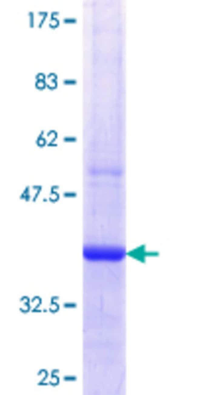 Abnova™Human SERPINB7 Partial ORF (NP_003775.1, 227 a.a. - 327 a.a.) Recombinant Protein with GST-tag at N-terminal 25μg Abnova™Human SERPINB7 Partial ORF (NP_003775.1, 227 a.a. - 327 a.a.) Recombinant Protein with GST-tag at N-terminal