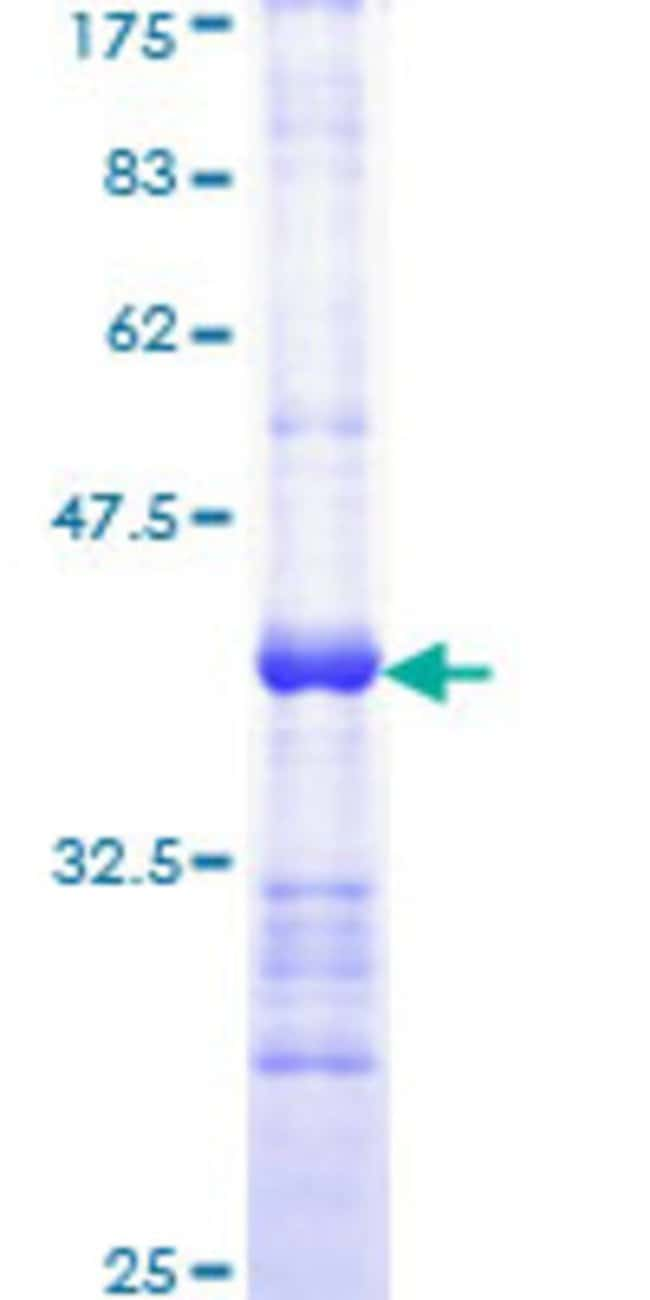 Abnova™Human TRADD Partial ORF (NP_003780, 203 a.a. - 312 a.a.) Recombinant Protein with GST-tag at N-terminal 10μg Abnova™Human TRADD Partial ORF (NP_003780, 203 a.a. - 312 a.a.) Recombinant Protein with GST-tag at N-terminal