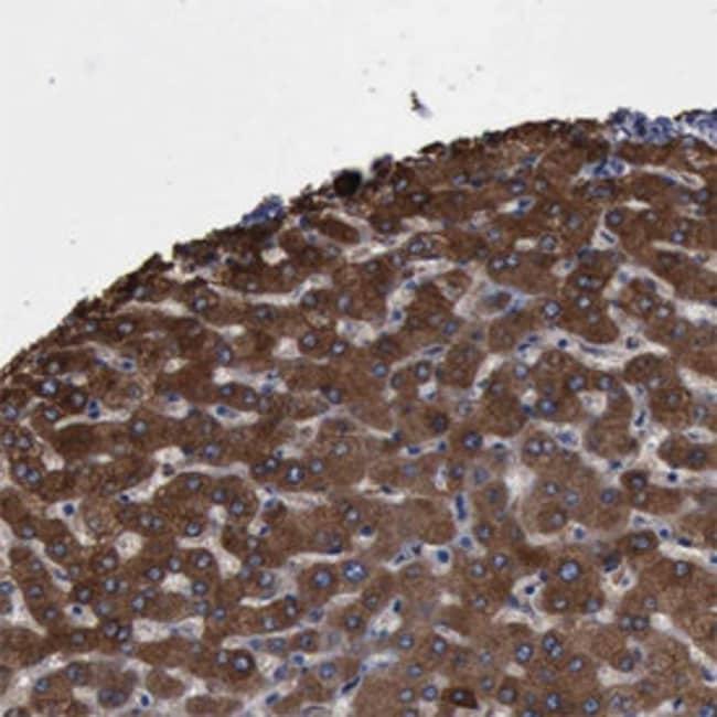 PYGL Rabbit anti-Human, Polyclonal , Abnova 100μL; Unlabeled:Antibodies