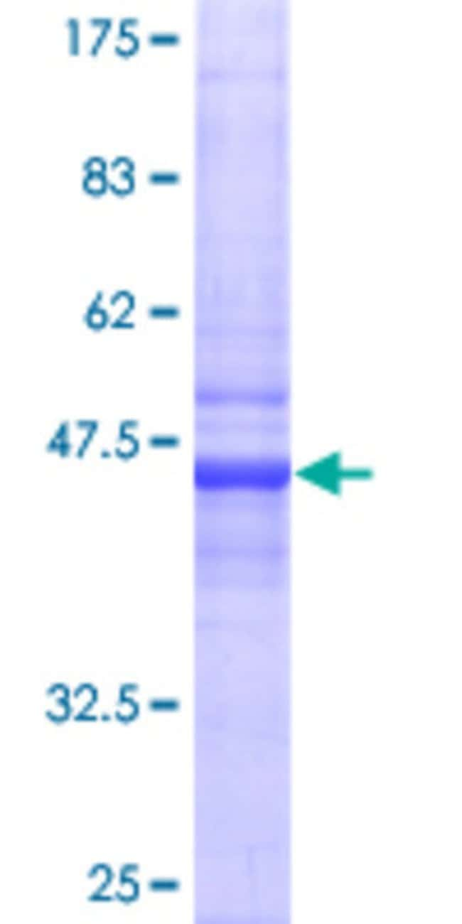 Abnova™Human CRADD Full-length ORF (AAH17042, 1 a.a. - 199 a.a.) Recombinant Protein with GST-tag at N-terminal 10μg Abnova™Human CRADD Full-length ORF (AAH17042, 1 a.a. - 199 a.a.) Recombinant Protein with GST-tag at N-terminal