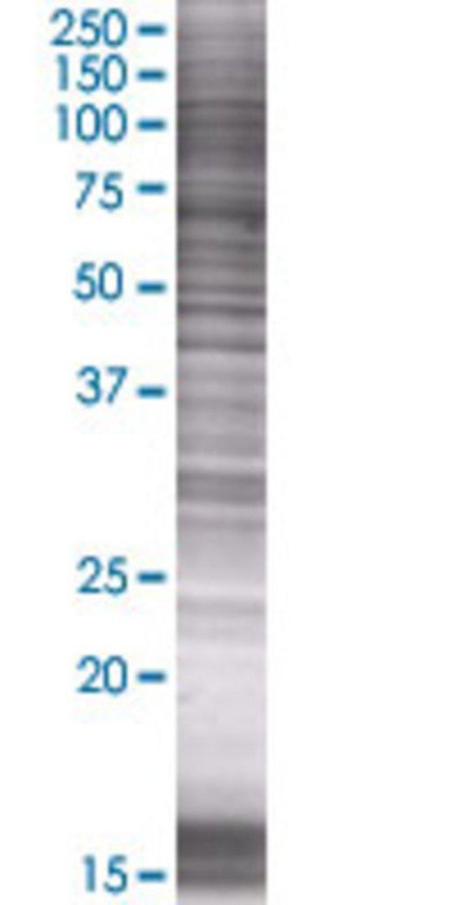 AbnovaADAM21 293T Cell Transient Overexpression Lysate (Denatured) 100μL:Protein