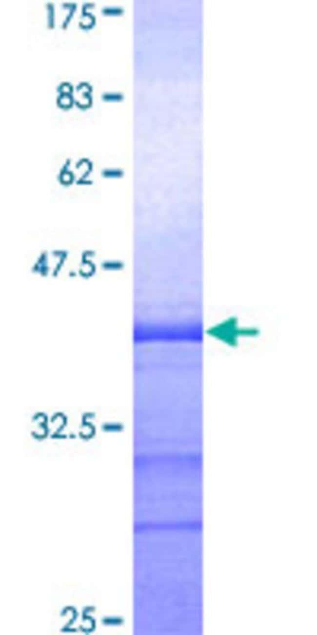 AbnovaHuman ADAM15 Partial ORF (AAH14566, 301 a.a. - 410 a.a.) Recombinant