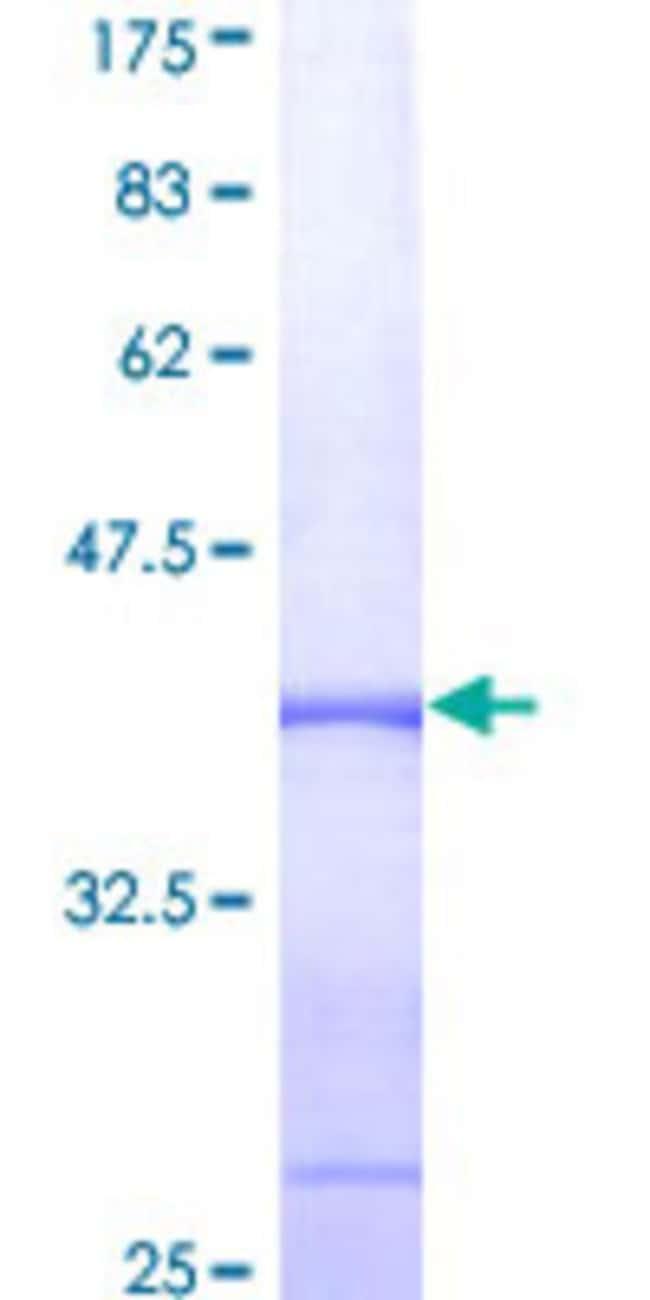 AbnovaHuman ADAM9 Partial ORF (NP_003807, 36 a.a. - 135 a.a.) Recombinant