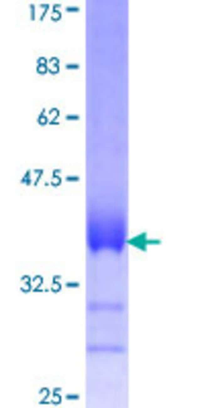 Abnova™Human CDS2 Partial ORF (NP_003809, 1 a.a. - 67 a.a.) Recombinant Protein with GST-tag at N-terminal 25μg Abnova™Human CDS2 Partial ORF (NP_003809, 1 a.a. - 67 a.a.) Recombinant Protein with GST-tag at N-terminal