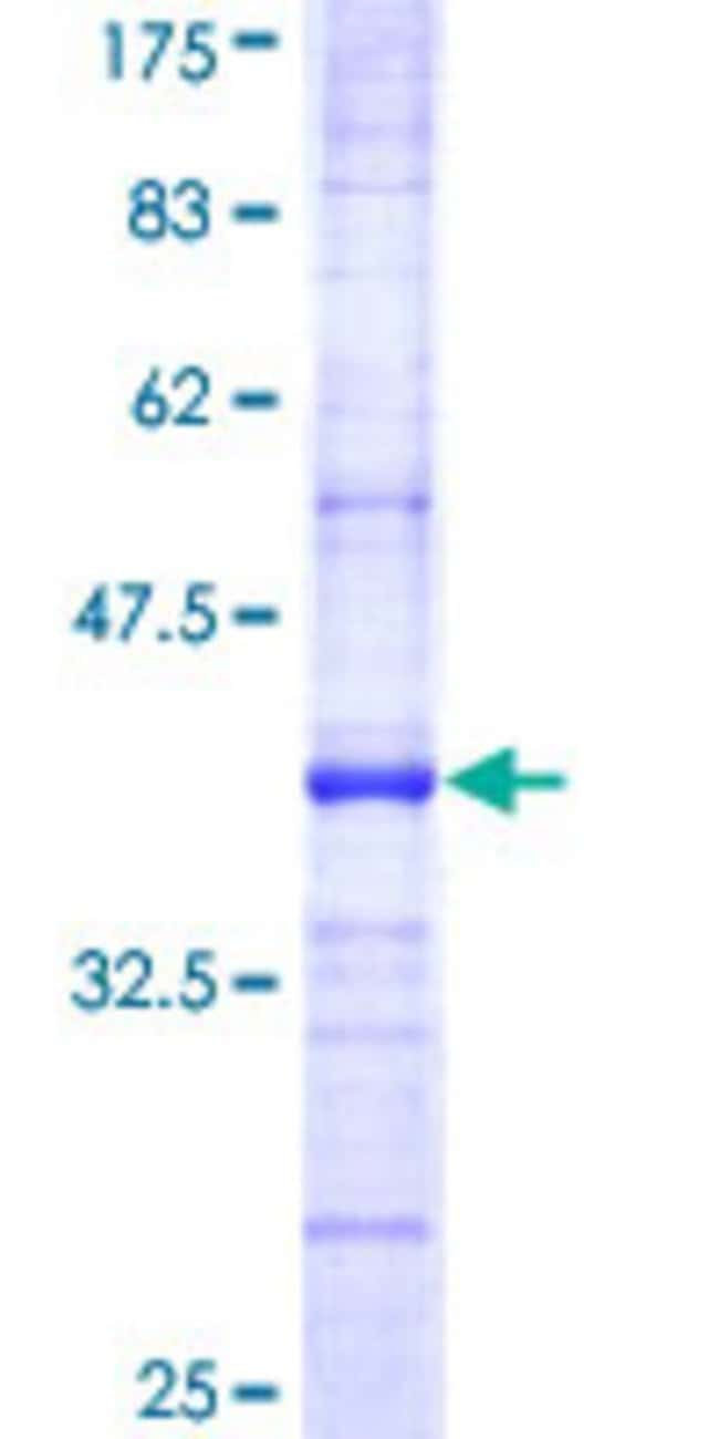 Abnova™Human CD164 Partial ORF (AAH11522, 1 a.a. - 115 a.a.) Recombinant Protein with GST-tag at N-terminal 10μg Abnova™Human CD164 Partial ORF (AAH11522, 1 a.a. - 115 a.a.) Recombinant Protein with GST-tag at N-terminal