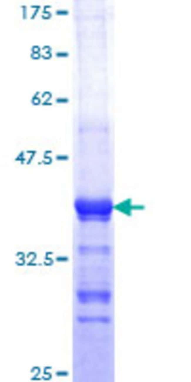 Abnova™Human FADD Partial ORF (AAH00334, 109 a.a. - 208 a.a.) Recombinant Protein with GST-tag at N-terminal 10μg Abnova™Human FADD Partial ORF (AAH00334, 109 a.a. - 208 a.a.) Recombinant Protein with GST-tag at N-terminal