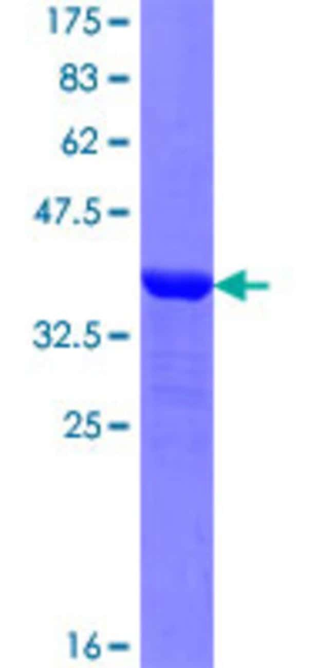 Abnova™Human NAPG Partial ORF (NP_003817.1, 1 a.a. - 100 a.a.) Recombinant Protein with GST-tag at N-terminal 10μg Abnova™Human NAPG Partial ORF (NP_003817.1, 1 a.a. - 100 a.a.) Recombinant Protein with GST-tag at N-terminal