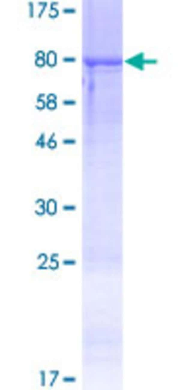 Abnova™Human RGS11 Full-length ORF (AAI53020.1, 1 a.a. - 467 a.a.) Recombinant Protein with GST-tag at N-terminal 10μg Abnova™Human RGS11 Full-length ORF (AAI53020.1, 1 a.a. - 467 a.a.) Recombinant Protein with GST-tag at N-terminal