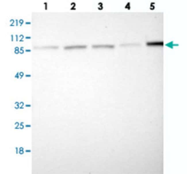 IKBKB Rabbit anti-Human, Polyclonal , Abnova 100μL; Unlabeled:Antibodies