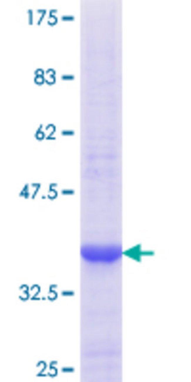 Abnova™Human PEX11B Partial ORF (NP_003837.1, 1 a.a. - 98 a.a.) Recombinant Protein with GST-tag at N-terminal 10μg Abnova™Human PEX11B Partial ORF (NP_003837.1, 1 a.a. - 98 a.a.) Recombinant Protein with GST-tag at N-terminal