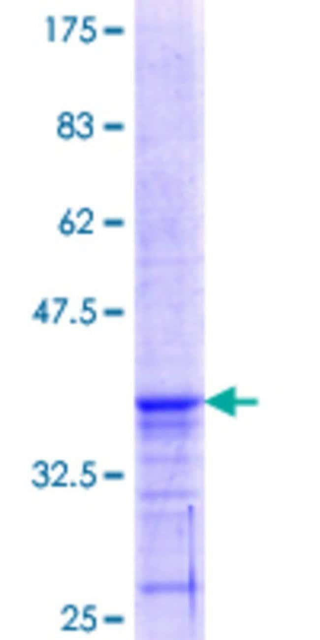 Abnova™Human PEX11A Partial ORF (NP_003838.1, 1 a.a. - 93 a.a.) Recombinant Protein with GST-tag at N-terminal 25μg Abnova™Human PEX11A Partial ORF (NP_003838.1, 1 a.a. - 93 a.a.) Recombinant Protein with GST-tag at N-terminal