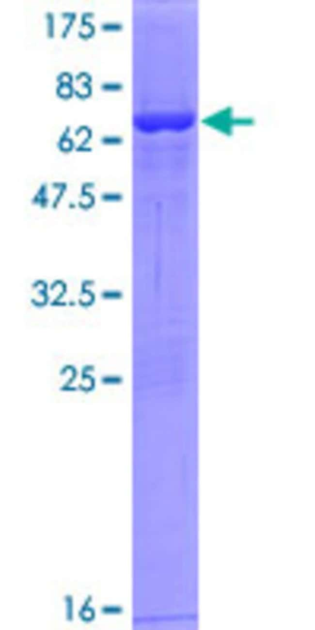 Abnova™ Human SUCLG2 Full-length ORF (NP_003839.1, 1 a.a. - 384 a.a.) Recombinant Protein with GST-tag at N-terminal 25μg Abnova™ Human SUCLG2 Full-length ORF (NP_003839.1, 1 a.a. - 384 a.a.) Recombinant Protein with GST-tag at N-terminal