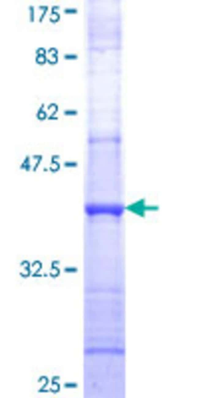 Abnova™Human SUCLG1 Partial ORF (NP_003840, 125 a.a. - 234 a.a.) Recombinant Protein with GST-tag at N-terminal 10μg Abnova™Human SUCLG1 Partial ORF (NP_003840, 125 a.a. - 234 a.a.) Recombinant Protein with GST-tag at N-terminal
