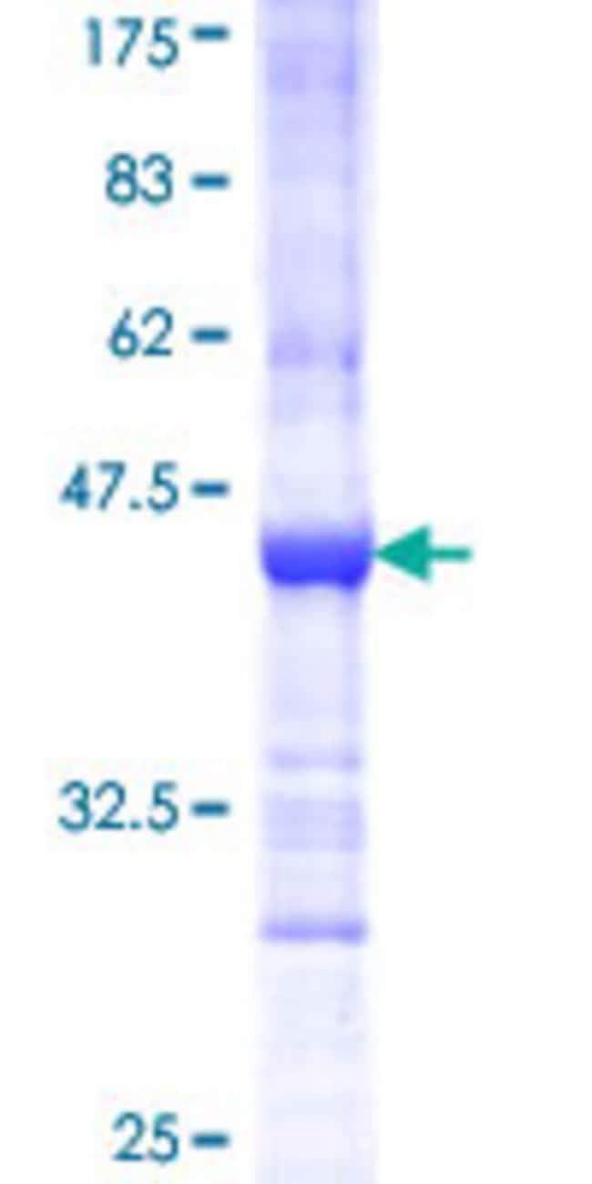 Abnova Human IL18RAP Partial ORF (NP_003844, 20 a.a. - 129 a.a.) Recombinant