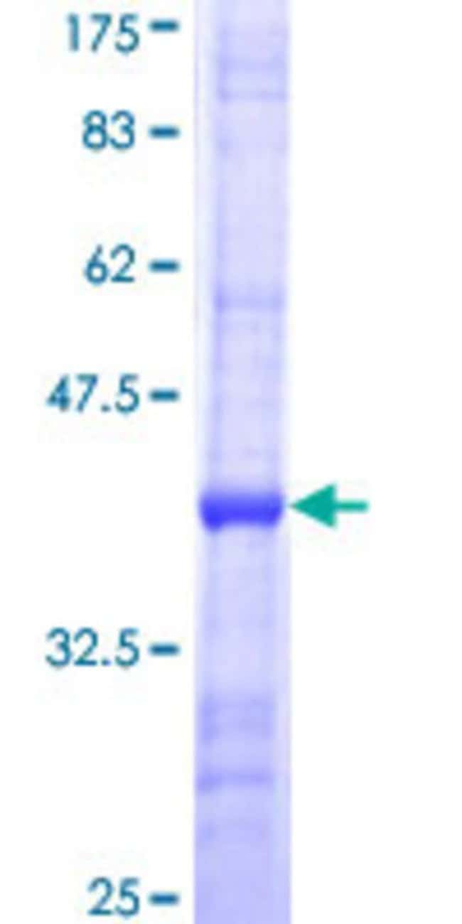 Abnova™Human DPM1 Partial ORF (NP_003850, 161 a.a. - 260 a.a.) Recombinant Protein with GST-tag at N-terminal 10μg Abnova™Human DPM1 Partial ORF (NP_003850, 161 a.a. - 260 a.a.) Recombinant Protein with GST-tag at N-terminal