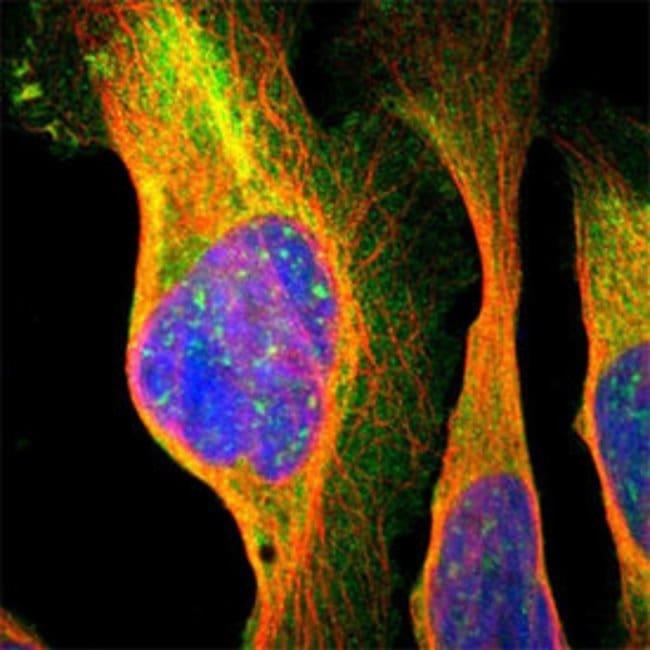 NMT2 Rabbit anti-Human, Polyclonal , Abnova 100μL; Unlabeled:Antibodies