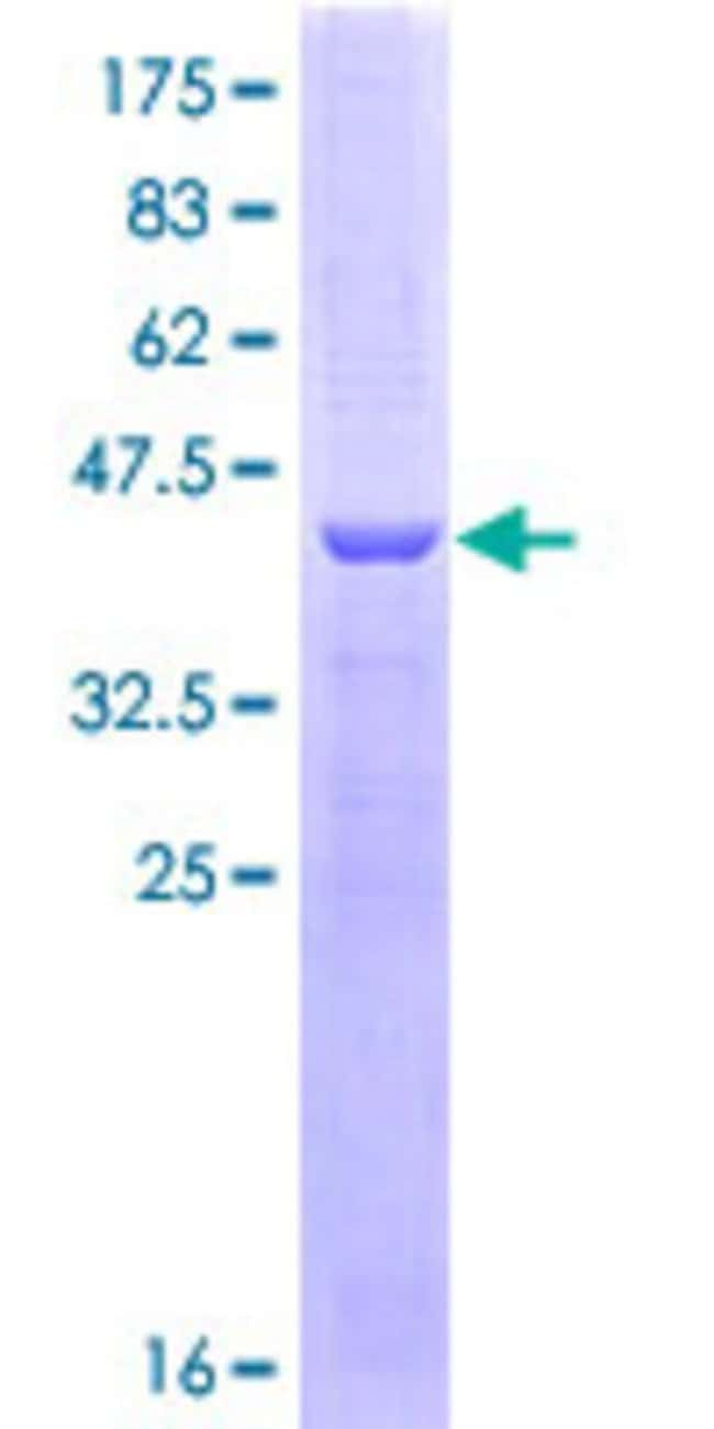 Abnova™Human CES2 Partial ORF (NP_003860, 514 a.a. - 621 a.a.) Recombinant Protein with GST-tag at N-terminal 10μg Abnova™Human CES2 Partial ORF (NP_003860, 514 a.a. - 621 a.a.) Recombinant Protein with GST-tag at N-terminal