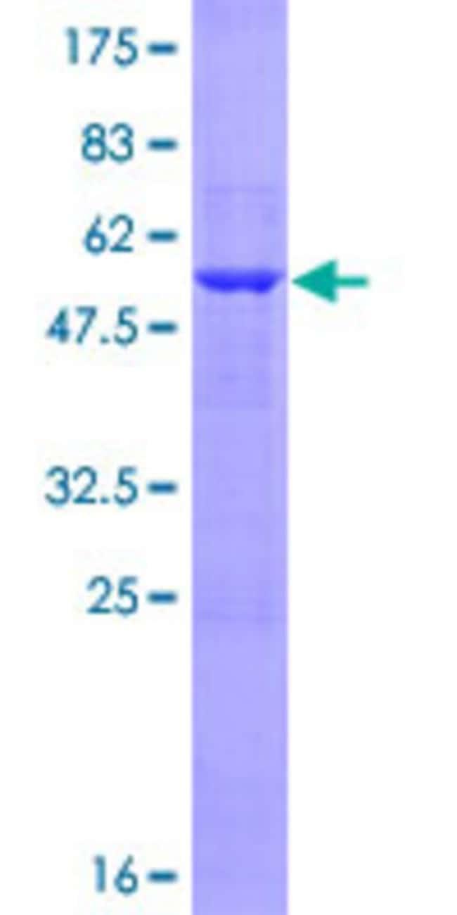 Abnova Human LIN7A Full-length ORF (NP_004655.1, 1 a.a. - 233 a.a.) Recombinant