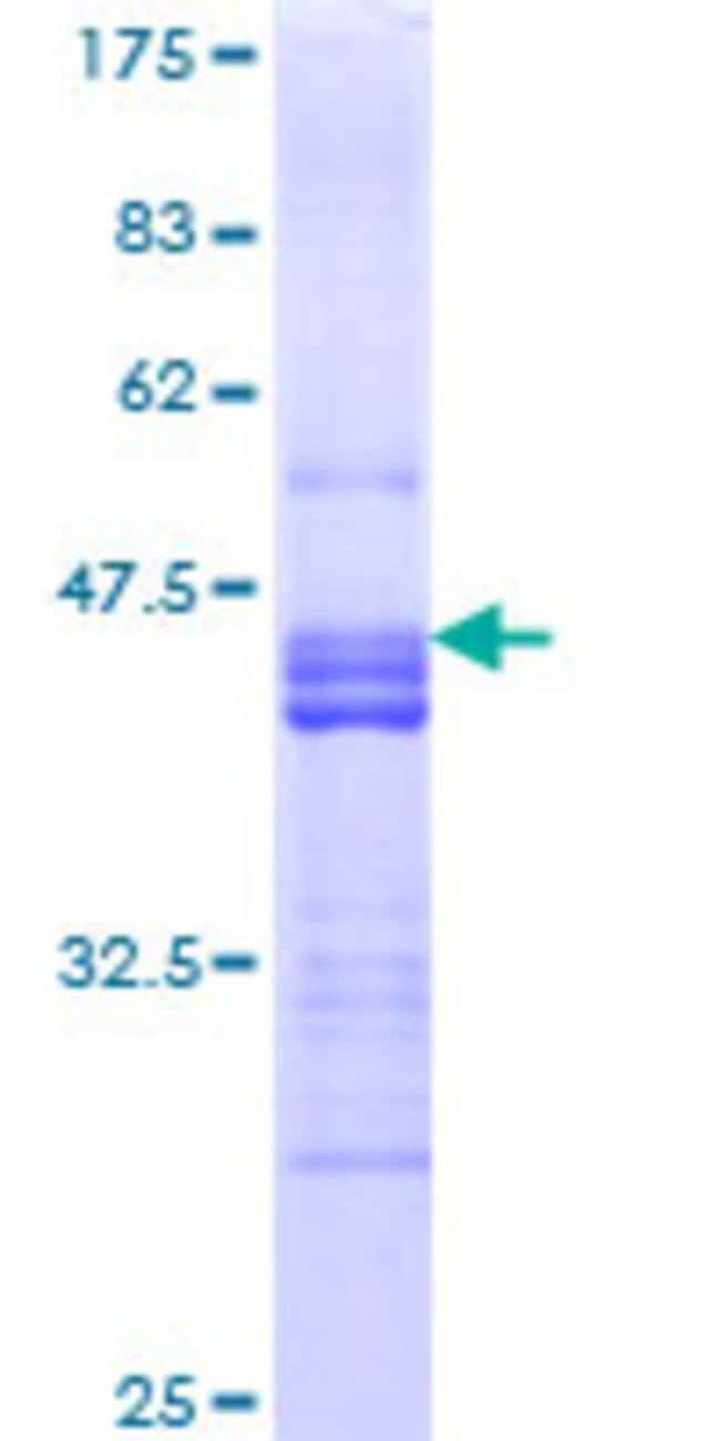 Abnova™ Human NRP2 Partial ORF (NP_957718, 22 a.a. - 131 a.a.) Recombinant Protein with GST-tag at N-terminal 25μg Abnova™ Human NRP2 Partial ORF (NP_957718, 22 a.a. - 131 a.a.) Recombinant Protein with GST-tag at N-terminal