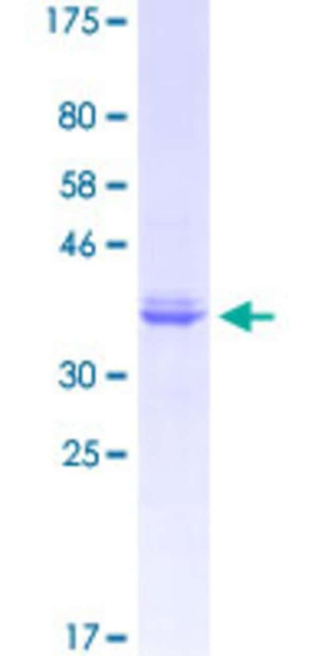 Abnova™Human NRP1 Partial ORF (NP_003864.4, 22 a.a. - 131 a.a.) Recombinant Protein with GST-tag at N-terminal 25μg Abnova™Human NRP1 Partial ORF (NP_003864.4, 22 a.a. - 131 a.a.) Recombinant Protein with GST-tag at N-terminal