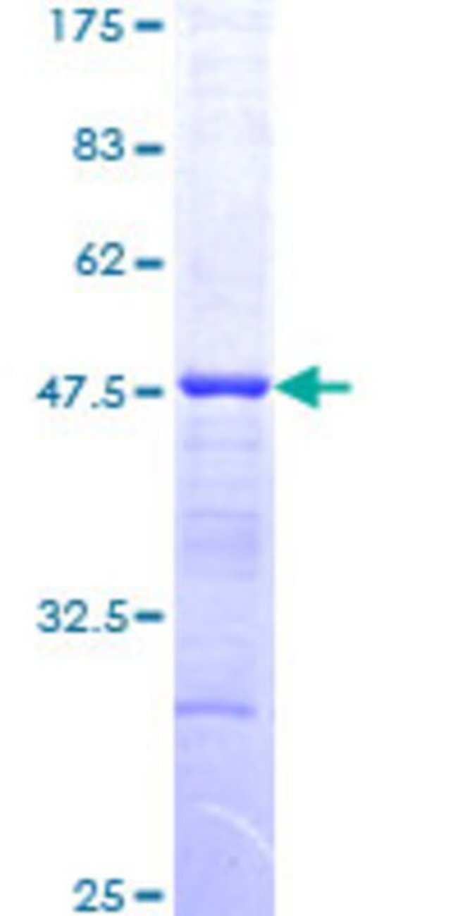 Abnova Human HDAC3 Partial ORF (NP_003874, 319 a.a. - 428 a.a.) Recombinant