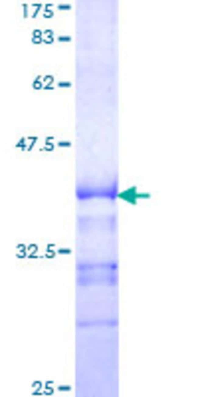 Abnova™ Human KSR Partial ORF (XP_290793, 301 a.a. - 400 a.a.) Recombinant Protein with GST-tag at N-terminal 10μg Abnova™ Human KSR Partial ORF (XP_290793, 301 a.a. - 400 a.a.) Recombinant Protein with GST-tag at N-terminal